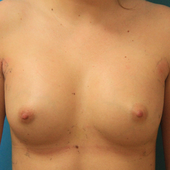 25-34 year old woman treated with Breast Augmentation after 3744060