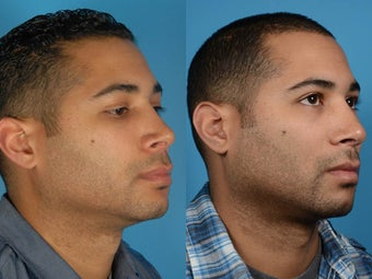 Revision Rhinoplasty - Male after 1219868