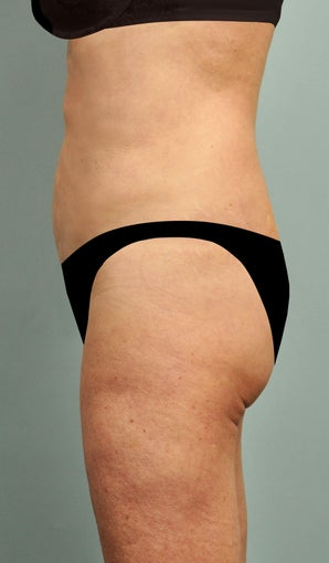 60 yr old female Smartlipo Laser Liposuction - Abdomen, hips, flanks, pubis 2 mo post op