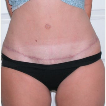 25-34 year old woman treated with Tummy Tuck after 1970063