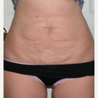 25-34 year old woman treated with Tummy Tuck before 1970063