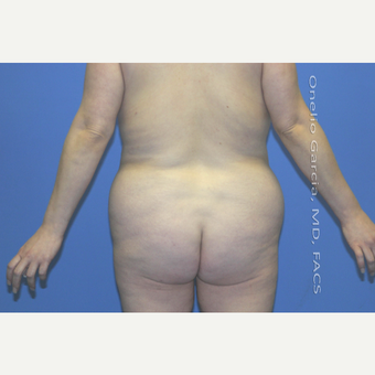 "45-54 year old woman treated with Body Lift-Circumferential ""Belt"" lipectomy + Vaser Liposuction before 3041527"