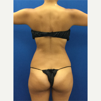 25-34 year old woman treated with Laser Liposuction after 3142279