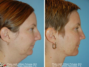 Neck Liposuction before 1389499