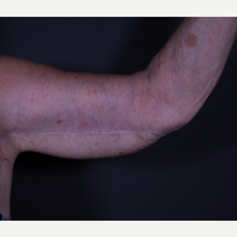 65-74 year old woman treated with Arm Lift after 3101032