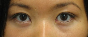 Double eyelid surgery with CO2 laser after 259536