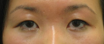 Double eyelid surgery with CO2 laser before 259536