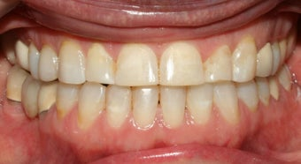 Adult TMJ and orthodontic treatment after 222992