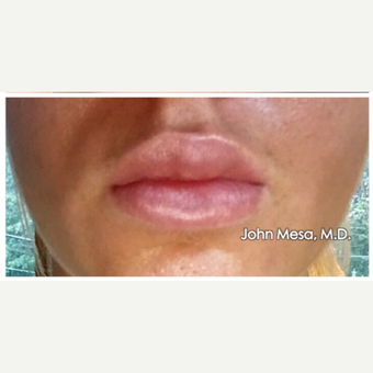 18-24 year old woman treated with Juvederm  for Lip Augmentation after 3059011