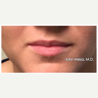 18-24 year old woman treated with Juvederm  for Lip Augmentation before 3059011