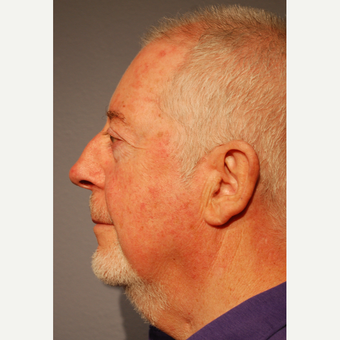 65-74 year old man treated with Neck Lift before 3770203