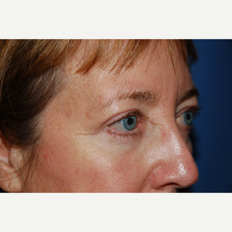 45-54 year old woman treated with Eyelid Surgery after 3782119