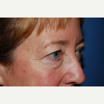 45-54 year old woman treated with Eyelid Surgery before 3782119