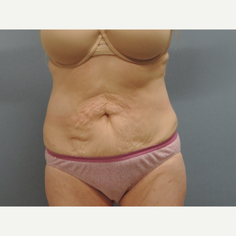 45-54 year old woman treated with Smart Lipo after 3448745