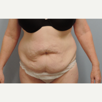 45-54 year old woman treated with Smart Lipo before 3448745