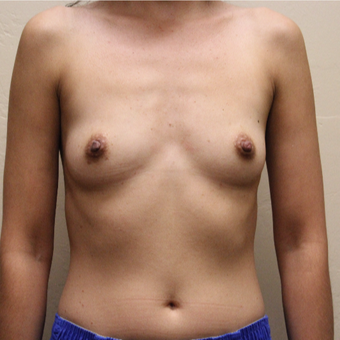 35-44 year old woman treated with Breast Augmentation before 3496834