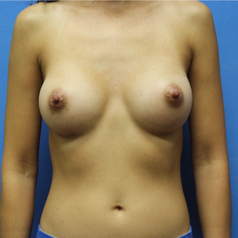 35-44 year old woman treated with Breast Augmentation after 3496834