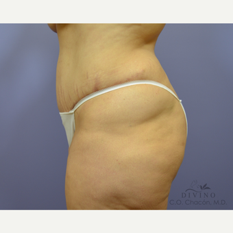 35-44 year old woman treated with Tummy Tuck after 3421986