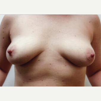 35-44 year old woman treated with Breast Augmentation before 3458242