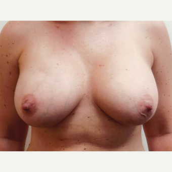 35-44 year old woman treated with Breast Augmentation after 3458242