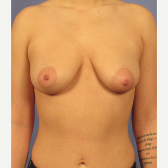 25-34 year old woman treated with Breast Augmentation before 3106735