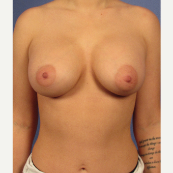 25-34 year old woman treated with Breast Augmentation after 3106735