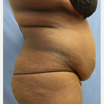 35-44 year old woman treated with Smart Lipo before 3371715
