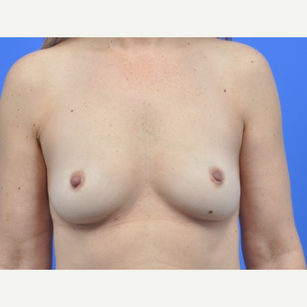 Breast Augmentation before 3062915