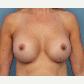 Breast Augmentation after 3062915