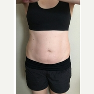 35-44 year old woman treated with SculpSure before 3125055