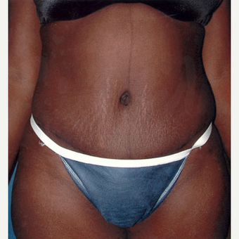35-44 year old woman treated with Tummy Tuck after 1873211
