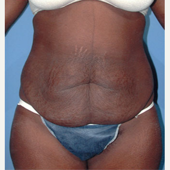 35-44 year old woman treated with Tummy Tuck before 1873211
