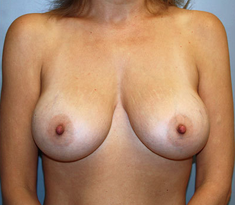 Breast Augmentation after 892495