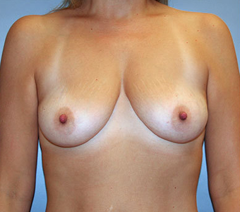 Breast Augmentation before 892495