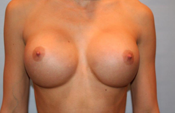 25-34 year old woman treated with Breast Implants after 3319090