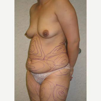 25-34 year old woman treated with Liposculpture before 3846253