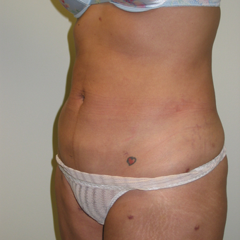25-34 year old woman treated with Liposculpture after 3846253