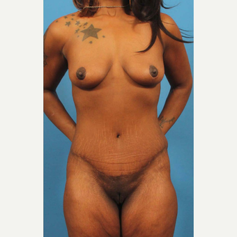 35-44 year old woman treated with Tummy Tuck after 3787071