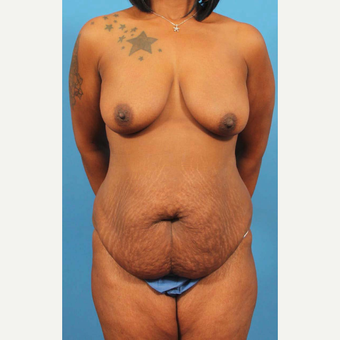 35-44 year old woman treated with Tummy Tuck before 3787071