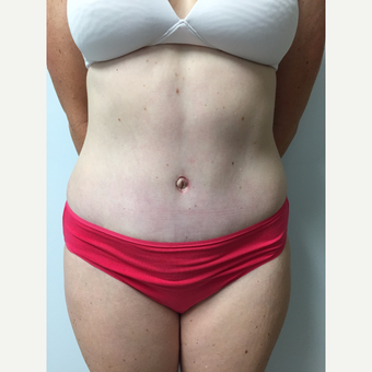 41 year old woman treated with Tummy Tuck and Liposuction after 3822277