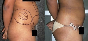 18-24 year old woman treated with Liposuction after 1762158