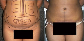 18-24 year old woman treated with Liposuction before 1762158