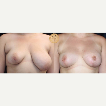 18-24 year old woman treated with Breast Reduction before 3200924