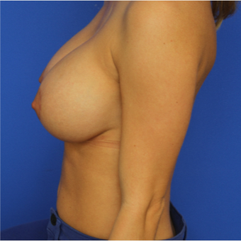 30- year old woman treated with Breast Augmentation after 3124516