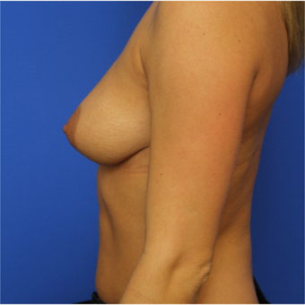 30- year old woman treated with Breast Augmentation before 3124516