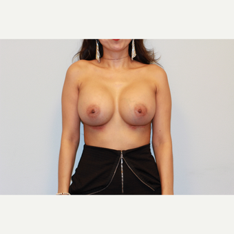 18-24 year old woman treated with Breast Implants after 3026825