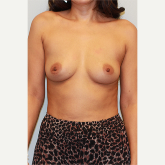 18-24 year old woman treated with Breast Implants before 3026825