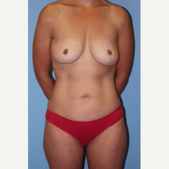 35-44 year old woman treated with Mommy Makeover before 2737004