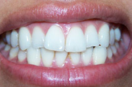 Porcelain Veneers before 1240484