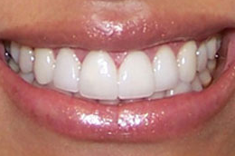 Porcelain Veneers after 1240484